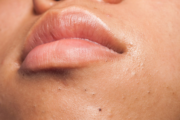 causes of blackheads on chin