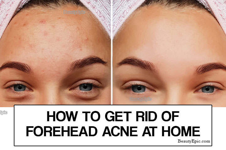 How to Get Rid of Forehead Acne Naturally?