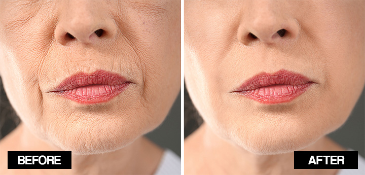home remedies for lip wrinkles
