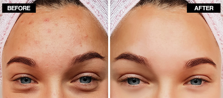 how to get rid of forehead acne naturally