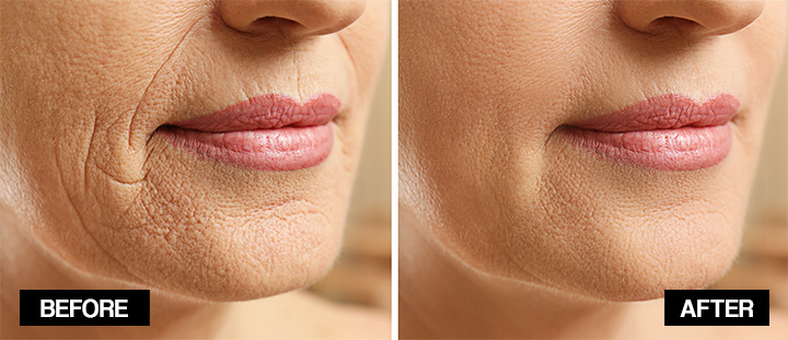 how to get rid of wrinkles around the mouth naturally