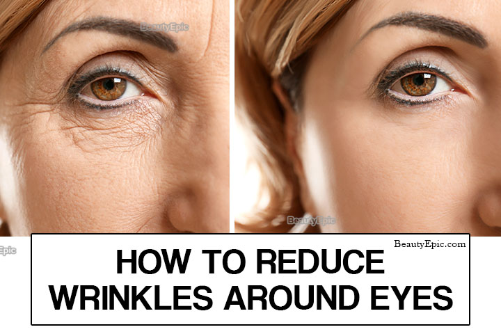 How to Get Rid of Under Eye Wrinkles Naturally