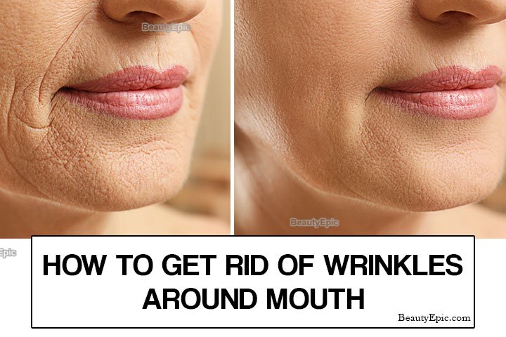 How To Reduce Wrinkles Around The Mouth Naturally?