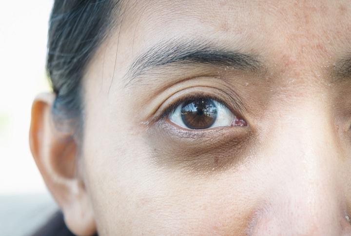 coconut oil for dark circles under eyes