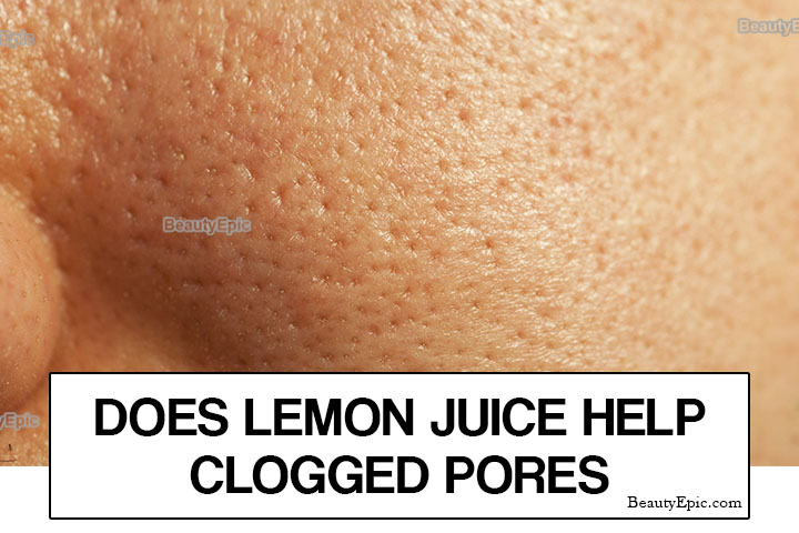 Does Lemon Juice Help Clogged Pores?