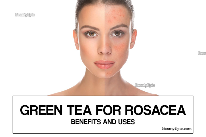 How to Use Green Tea for Rosacea