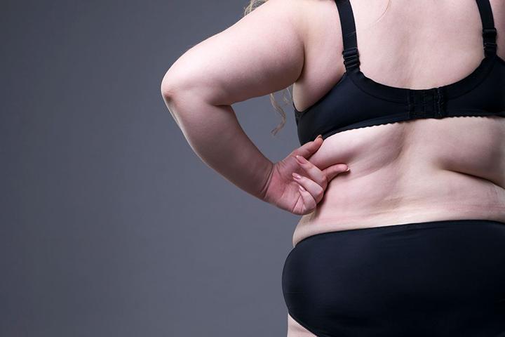 lose back fat