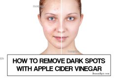 apple cider vinegar for dark spots