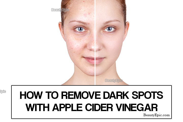 How to Remove Dark Spots with Apple Cider Vinegar