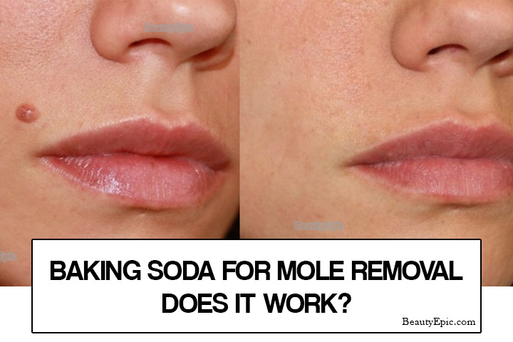 Baking Soda for Mole Removal – Does it Work?