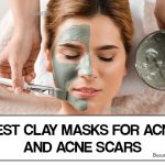 Best Clay Masks for Acne and acne Scars – Our Top 10