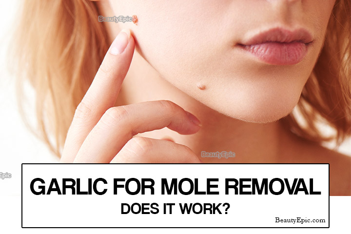 How to Use Garlic to Remove a Mole?