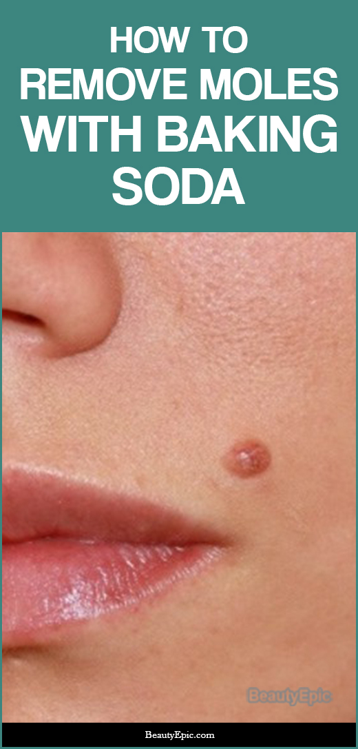 how to Remove Moles with Baking Soda