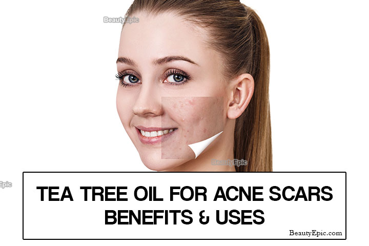 Tea Tree Oil For Acne Scars – Benefits & Uses
