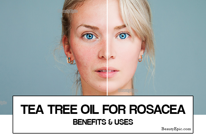 Tea Tree oil for Rosacea – Benefits and Uses