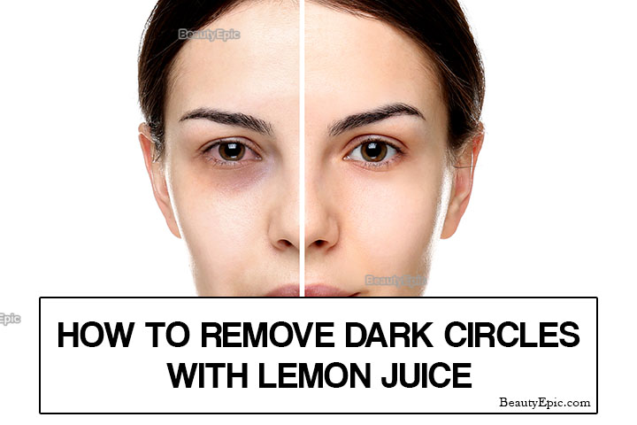 Does Lemon Juice Help Dark Circles Under Eyes?