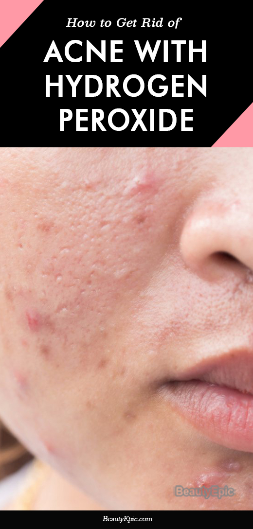 How to Use Hydrogen Peroxide for Acne?