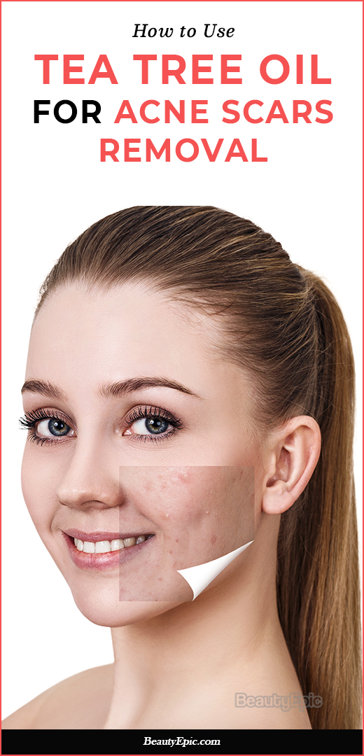 How to clear acne scars with tea tree oil – Africa Imports ...   Tea Tree Oil Acne Scars
