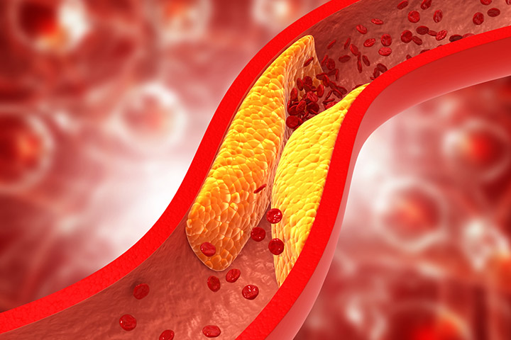 15 Healthy Foods That Can Help Prevent Clogged Arteries