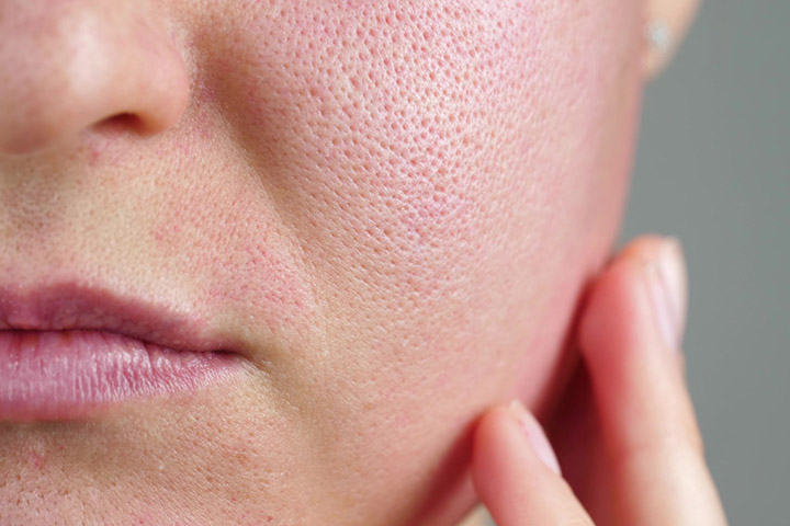 How To Get Rid of Open Pores Naturally at Home?