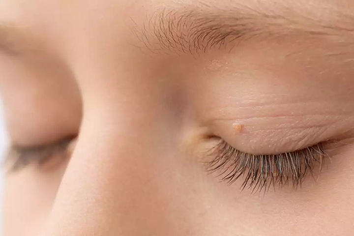 Skin Tags on Eyelids: Causes and Removal Treatment
